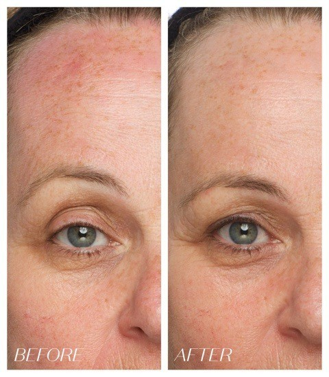 Dark Spot Corrector and Brightening Cream