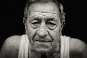 Wrinkles' Causes And Treatments